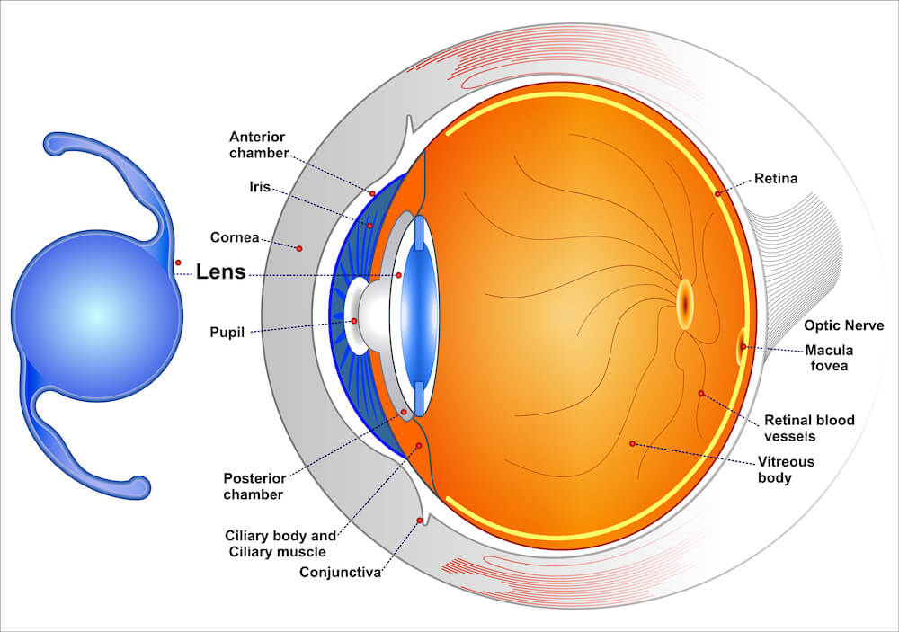 Diagram showing how an advanced lens helps with cataracts