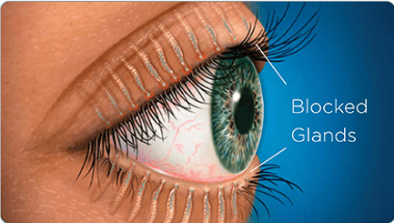 Illustration of eye with blocked glands