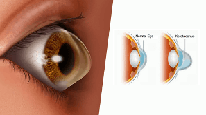 illustration of normal eye and keratoconus